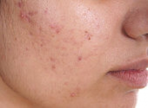 Best Homeopathic Treatment for Acne- Homeopathy4all