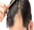 Hair Loss Treatment In Chandigarh