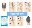 Know the best Hair Transplant In Delhi-India