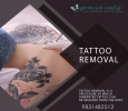 The best Tattoo Removal dermatology clinic in Kolkata