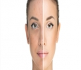 Get rid of dark complexion, uneven skin tone at Kaayakalp