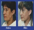 Anti-aging Treatments  in Vizag