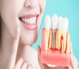 Manohar Dental Care Laser and Implant Center in Visakhapatna