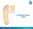 Homeopathy Treatment for Warts in jubilee hills