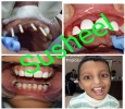 Dental Clinic in Hyderabad