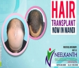 Hair Transplant in Himachal