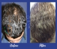 Hair Transplant in Visakhapatnam