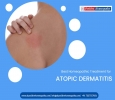Best Homeopathy Treatment for Atopic dermatitis in hyderbad