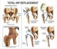 Doctor for knee pain in Indore|Orthopaedic surgeon in Indore