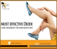 Laser Hair removal in Delhi at affordable cost