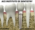 Dental Implantology Courses in India By Experts