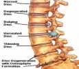 Spondylosis Treatment in Pune | Ayurvedic Hospital in Pune