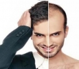 Hair transplant is the solution to all your hair fall issues