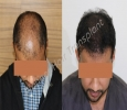 Best Hair Transplant in Bangalore