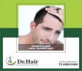 Discuss with the best hair specialist about hair transplanta