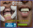 Dental Implants in Hyderabad | Best Cosmetic Dentist in Hyde